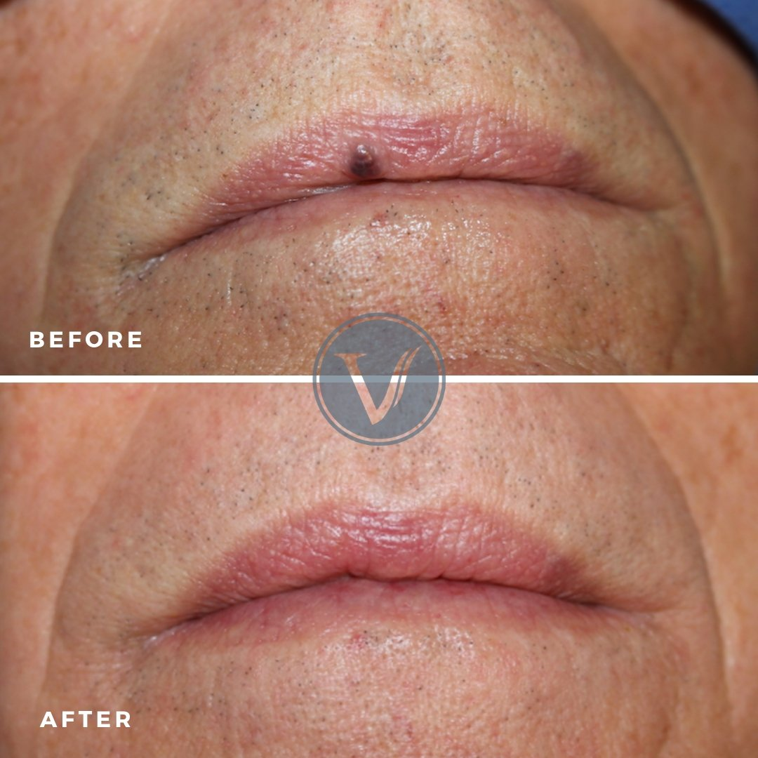 Treatment for Lip Veins