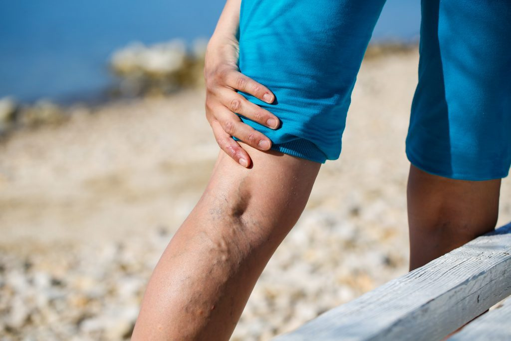 Varicose veins play no favorites. Everyone could be at risk.