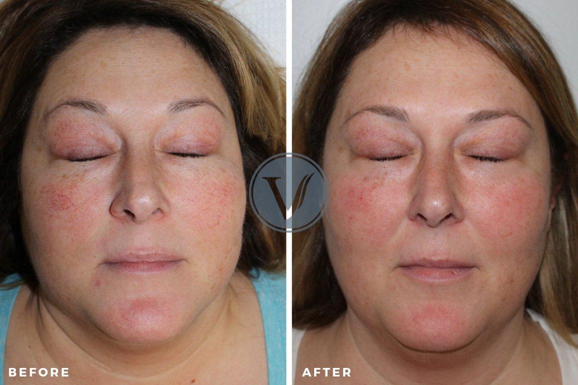 Facial Vein Laser Treatment 2 Week Post-Treatment
