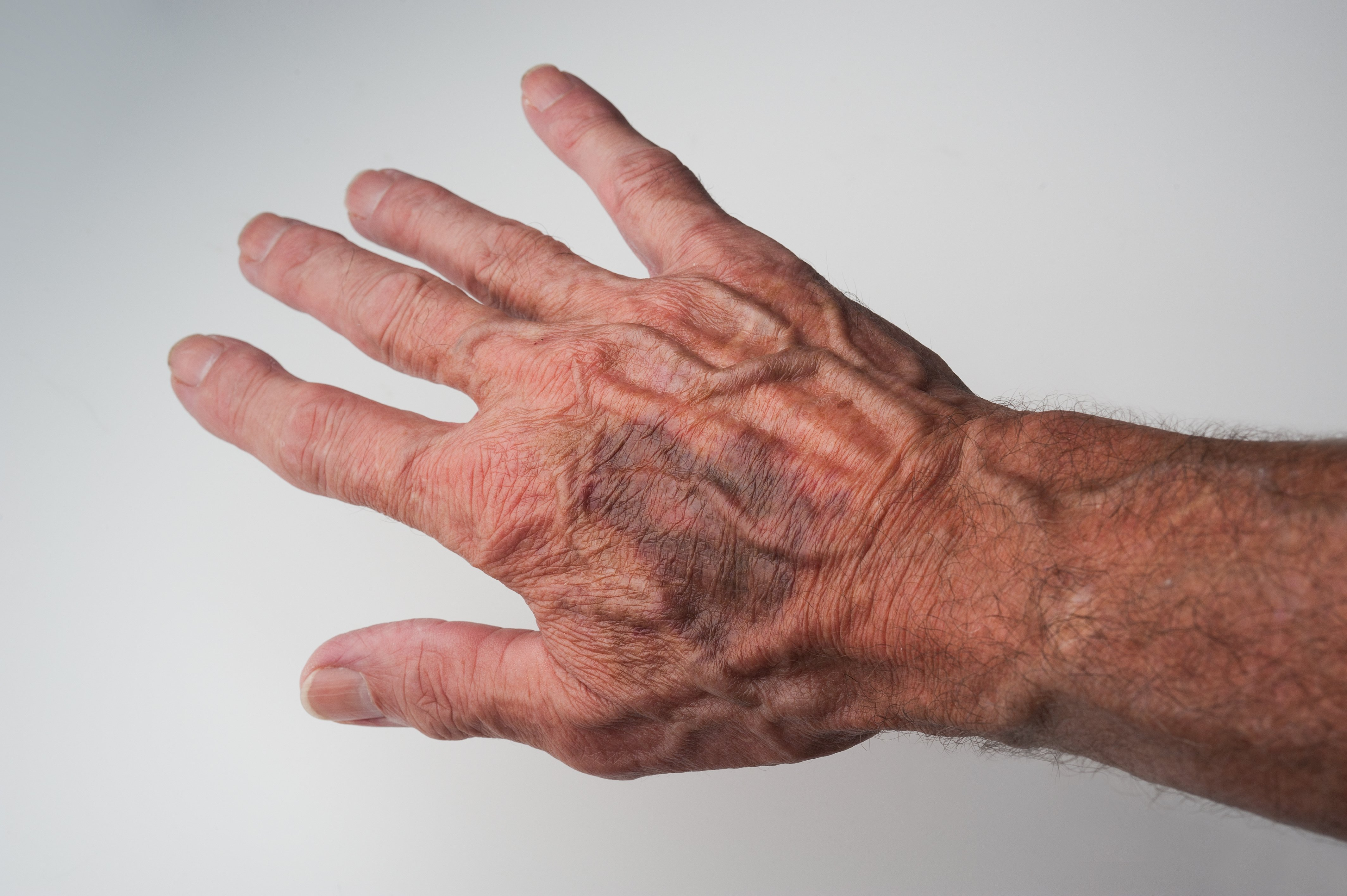 Prominent Hand Veins