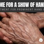 Treatment for Hand Veins