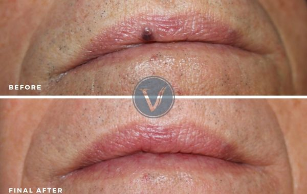 Treatment of Venous Lake or Lip Veins