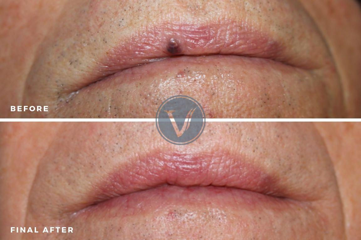 Treatment of Venous Lake or Lip Veins