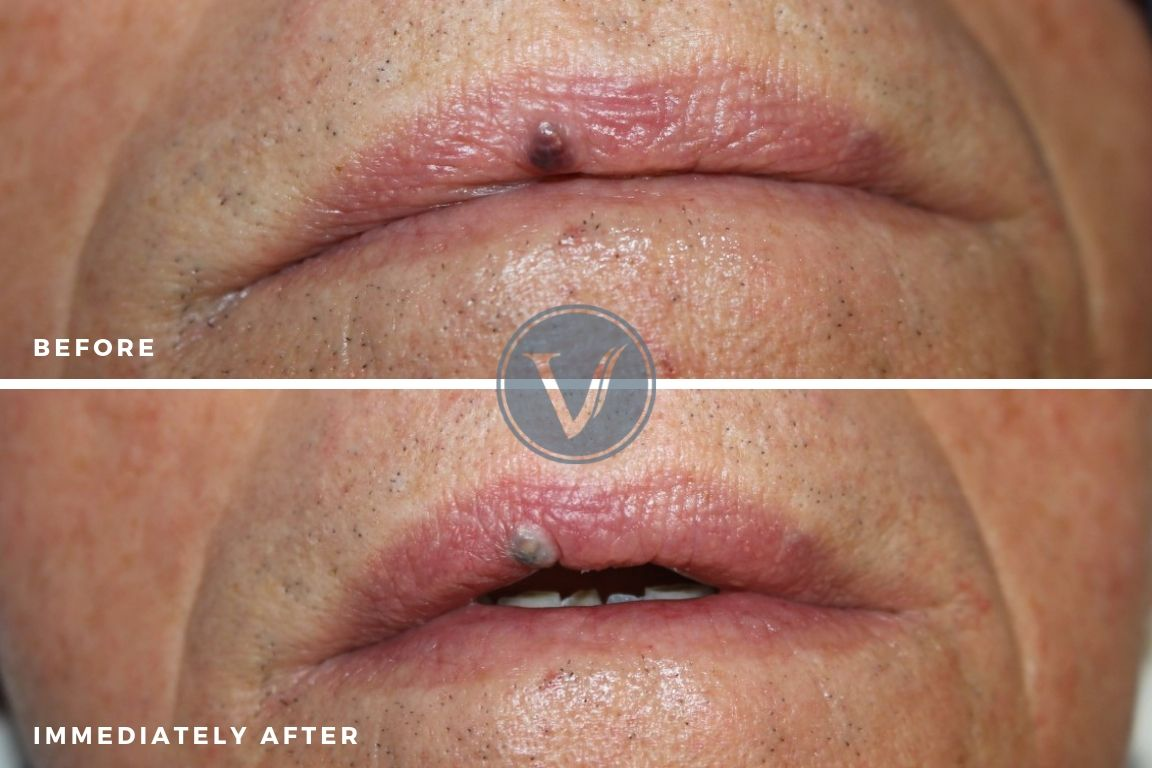 Venous Lake Treatment Before and Immediately After