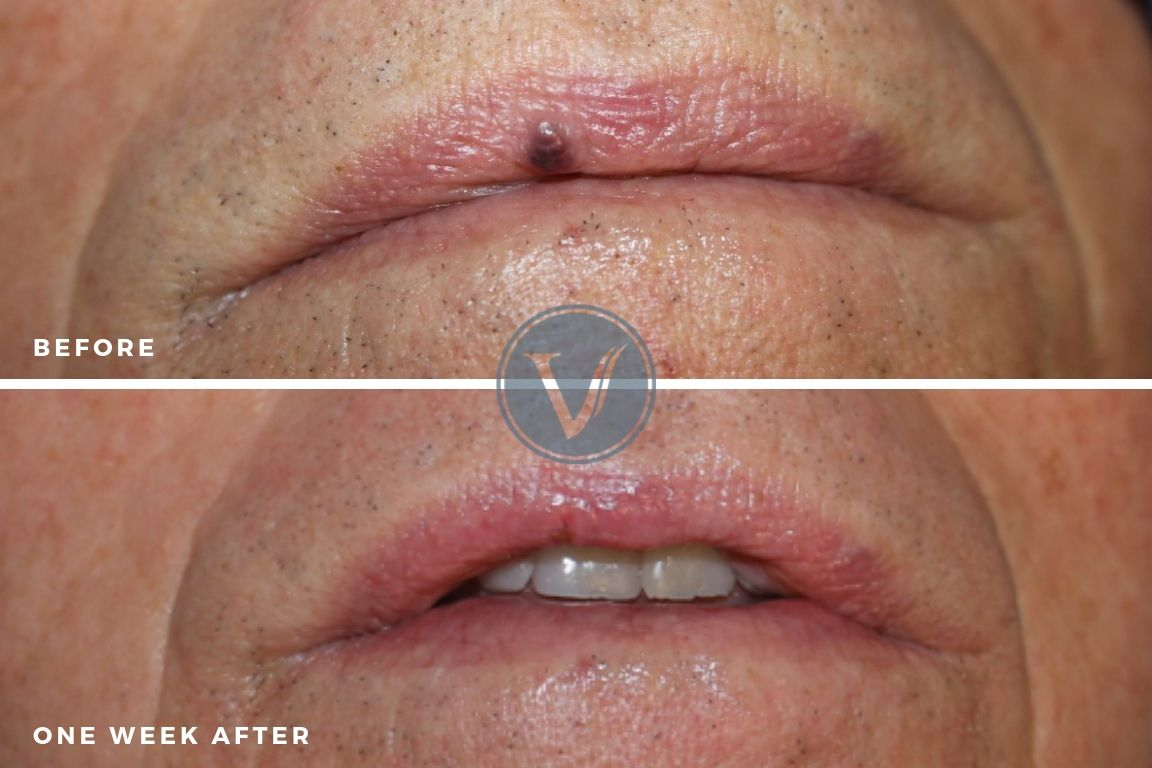 Venous Lake Before and one week post-treatment
