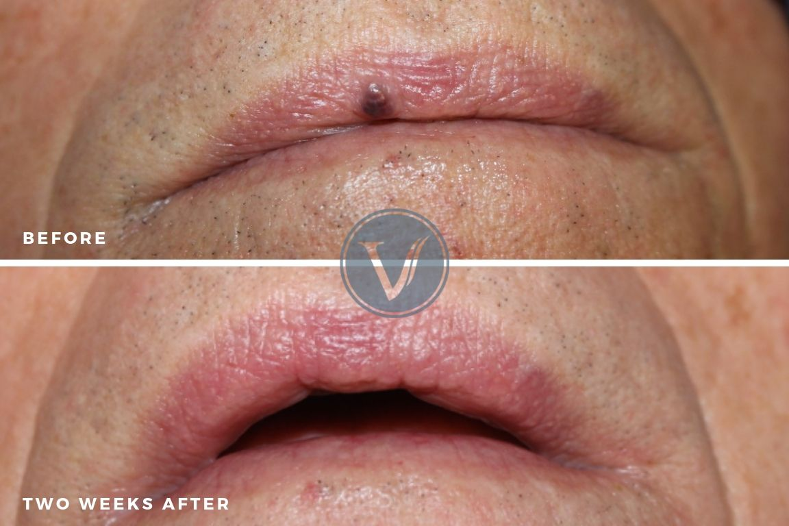 Venous Lake Treatment Two Weeks After Treatment