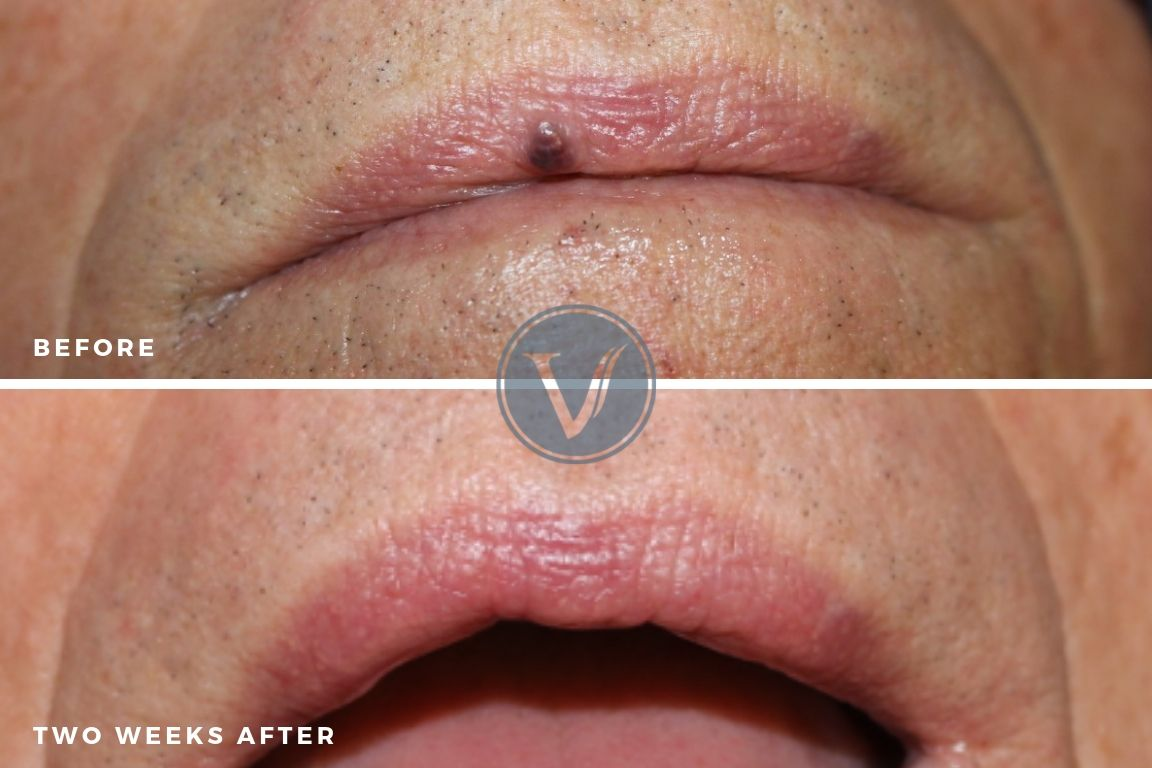 Venous Lake Treatment Before and Two Weeks After