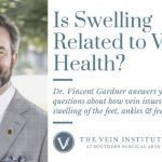 Is Swelling Related to Vein Health
