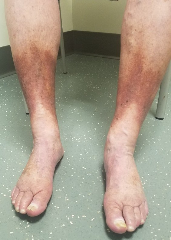 color or pigment skin changes caused by vein disease