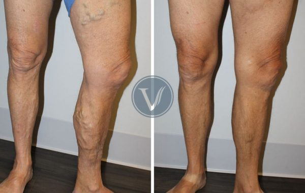 Varicose vein leg pain relief front inside left view before and after