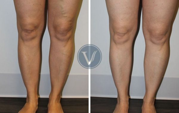 Endovenous Ablation & Microphlebectomy Treatment for Varicose Veins