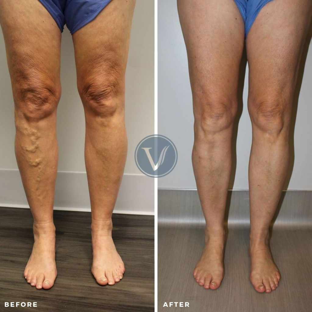 Endovenous Ablation Before and After Pic
