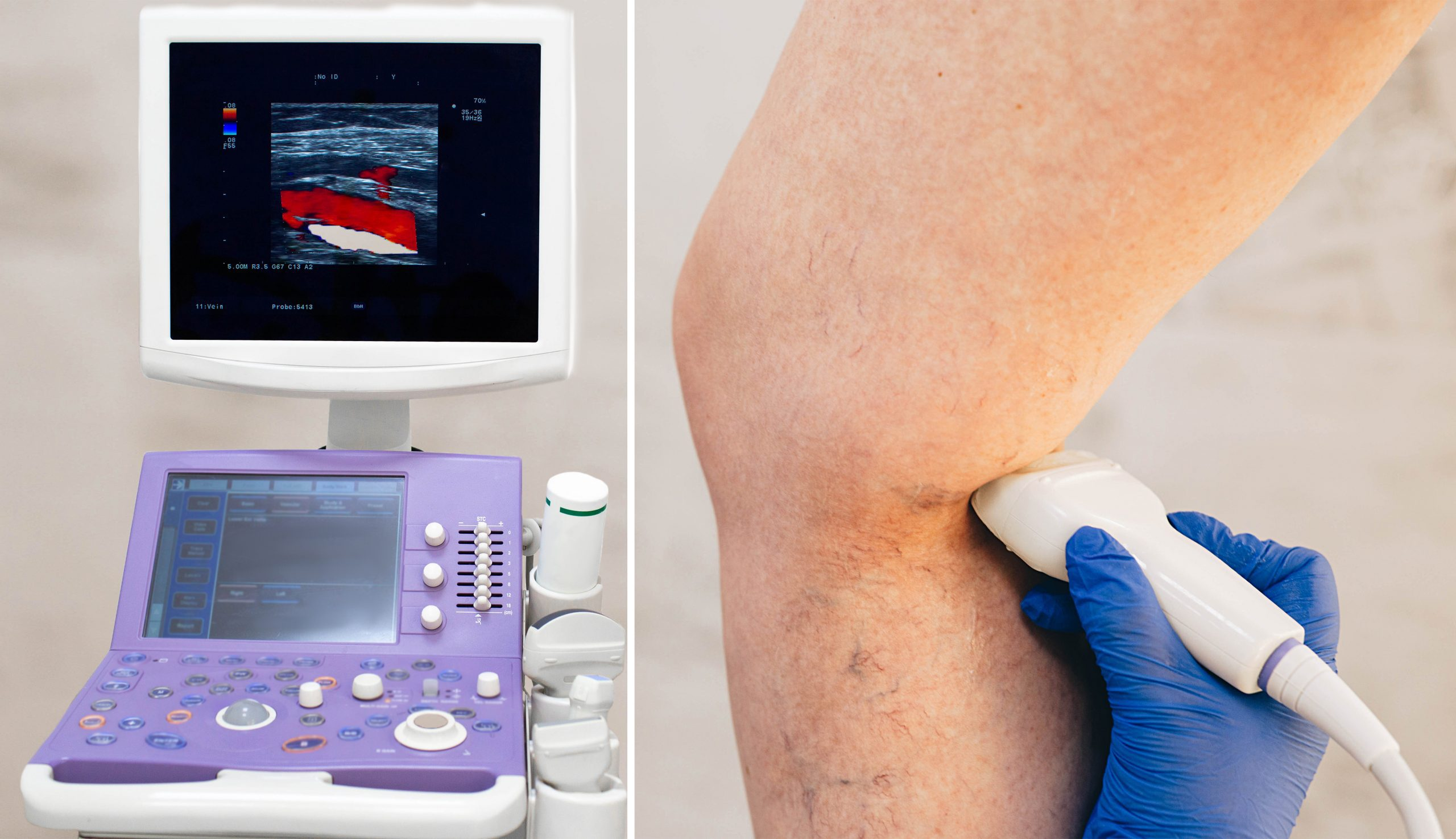 ultrasound exam can help determine is leg cramps are caused by venous insufficiency