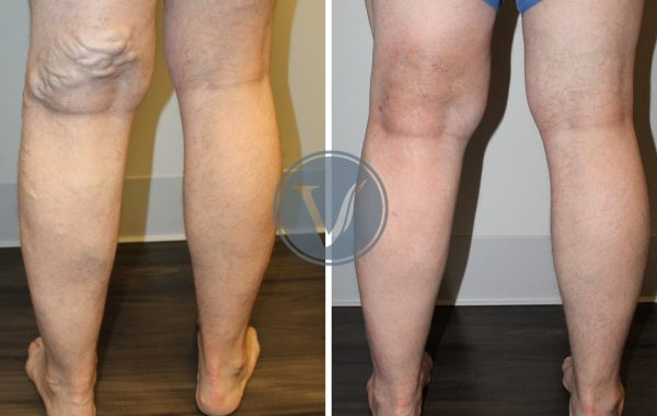 Treatment of Bulging Varicose Veins
