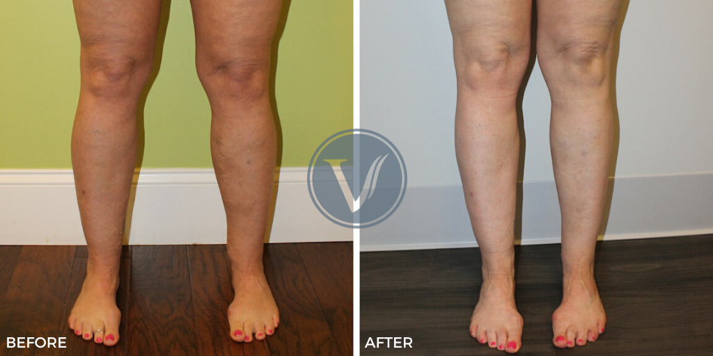 Before and After photos of vein disease treatment