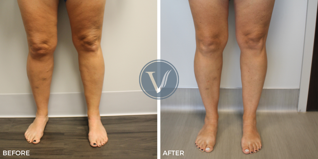 Before and After Photos of Varicose Vein Treatments