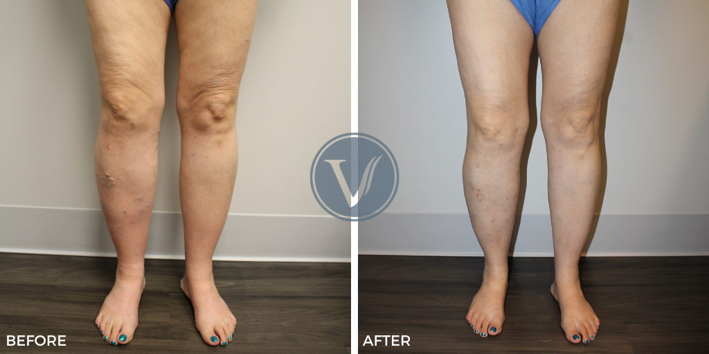 Before and after treatments for restless leg syndrome