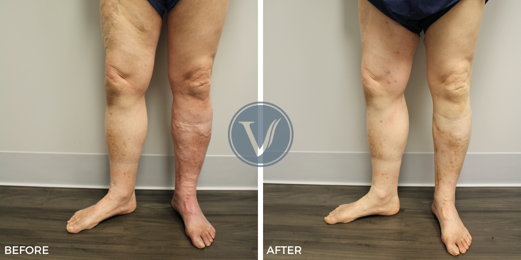 Before and After photos of vein treatment for deep vein thrombosis