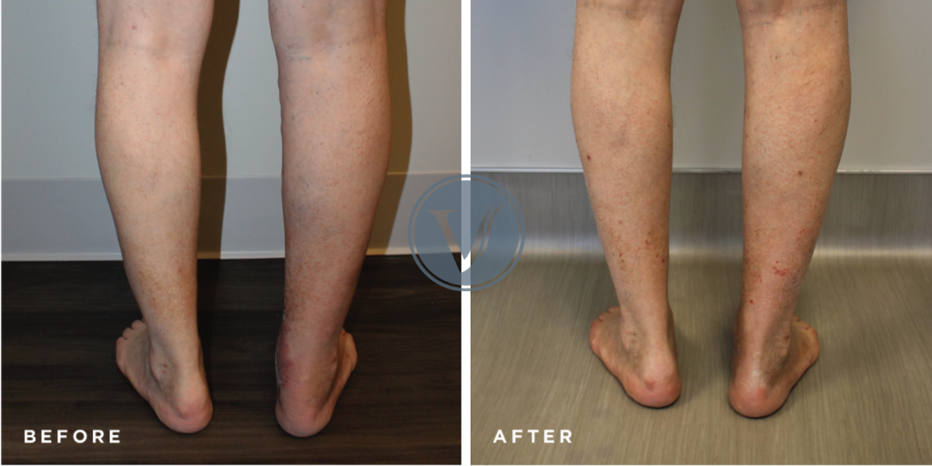 Before and after photos of endovenous ablation treatment