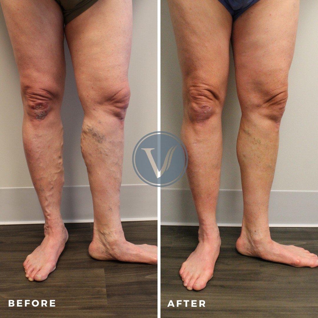 varicose veins causing leg pain front view