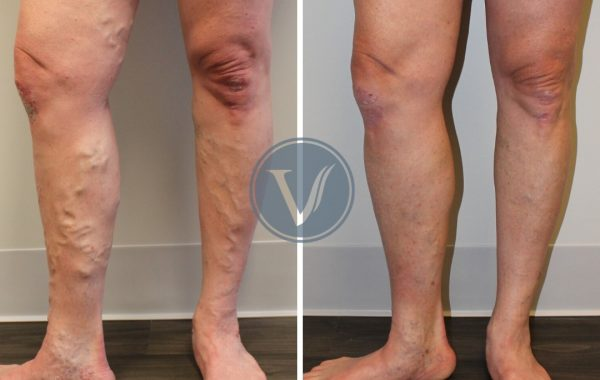 Treatment for Varicose Veins Causing Leg Pain and Swelling