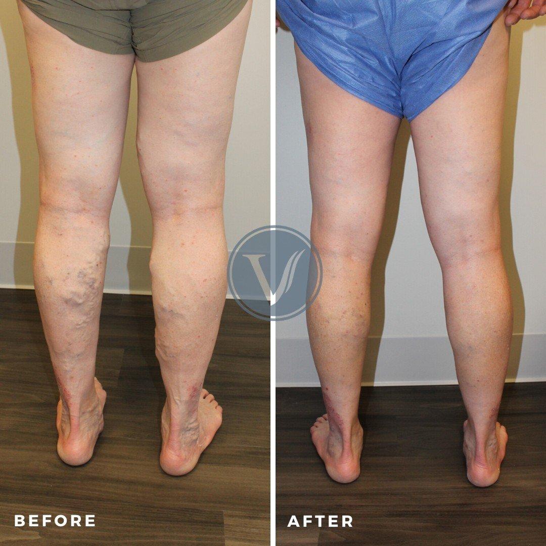 varicose veins causing leg pain back view