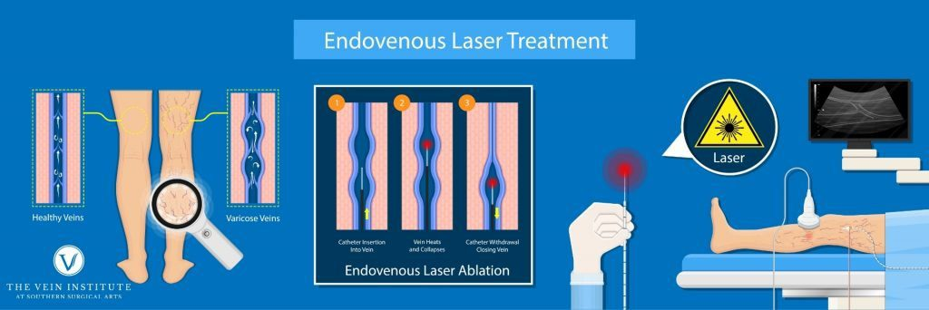 Endovenous Ablation Infographic